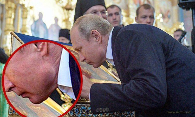 Рак или ботокс? Изменившаяся скула Путина озадачила сеть